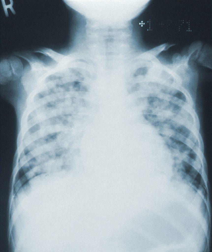 skúška z anatómie medicína brno